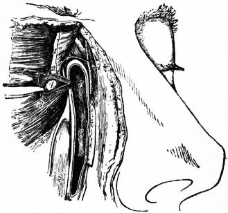 EB1911 Eye - Fig. 3.—Lachrymal Canals and Duct.jpg