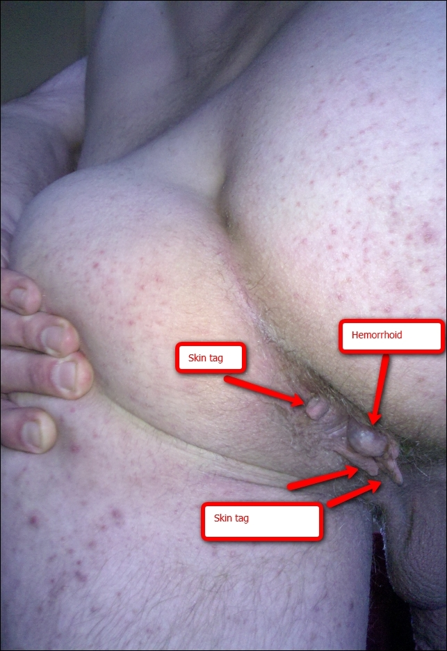 Skin tags around anus