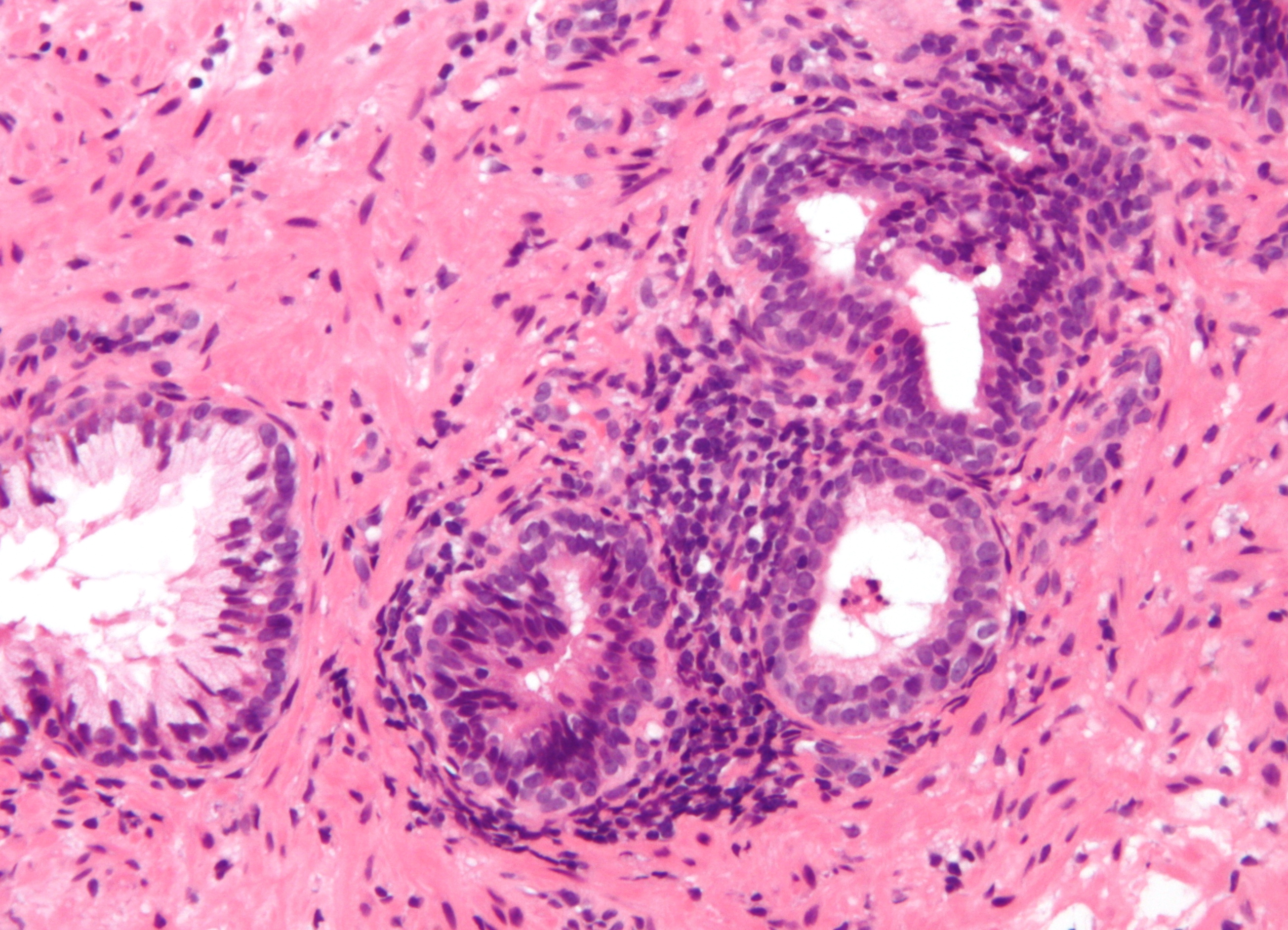 Prostate cancer liver function tests results