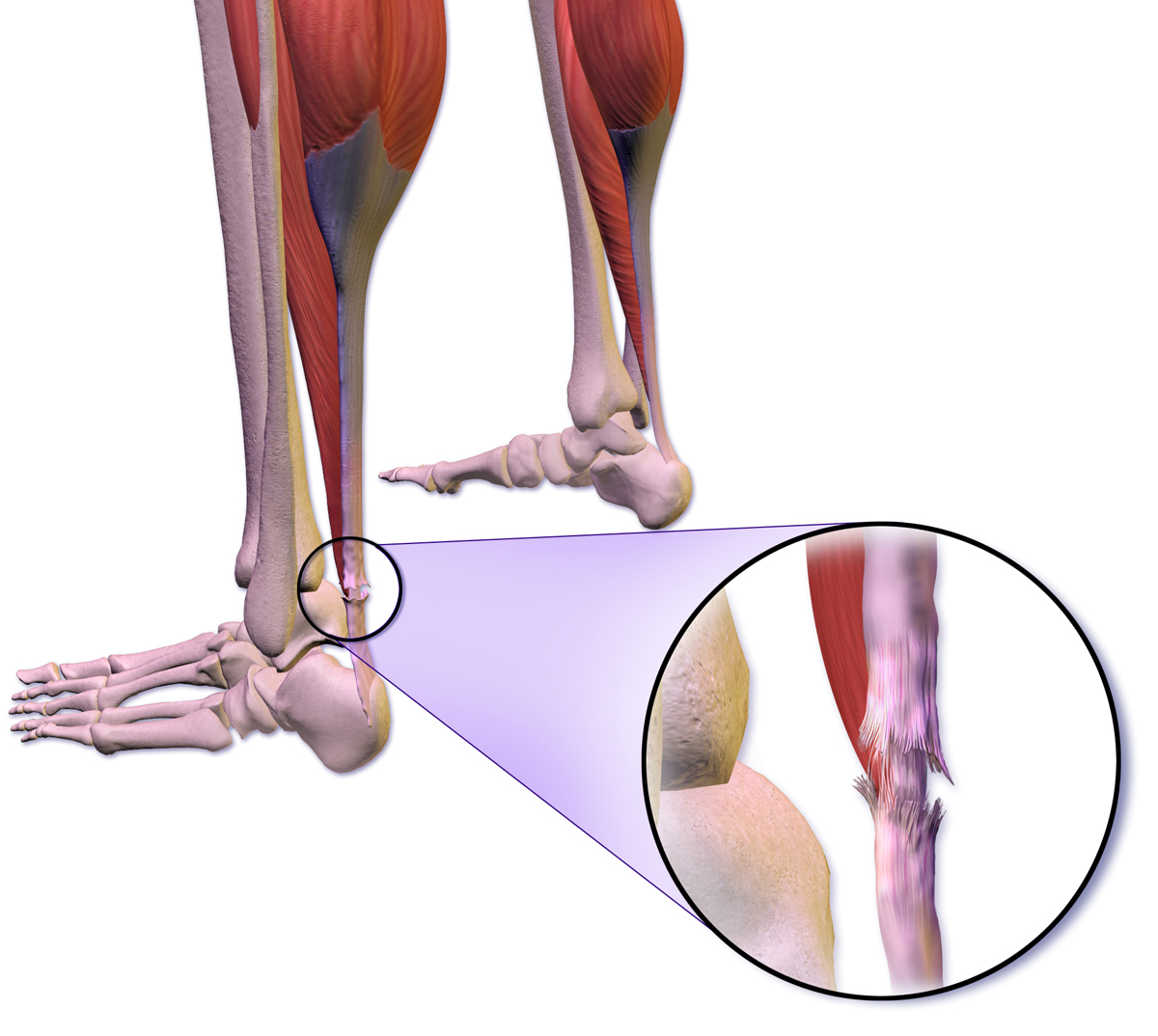 Image result for achilles tendon