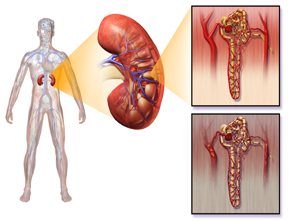 Diabetic Nephropathy Kidney