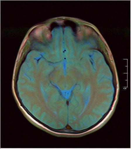 Brain MRI 0146 11.jpg