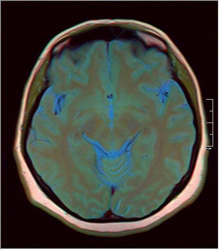 Brain MRI 0230 11.jpg