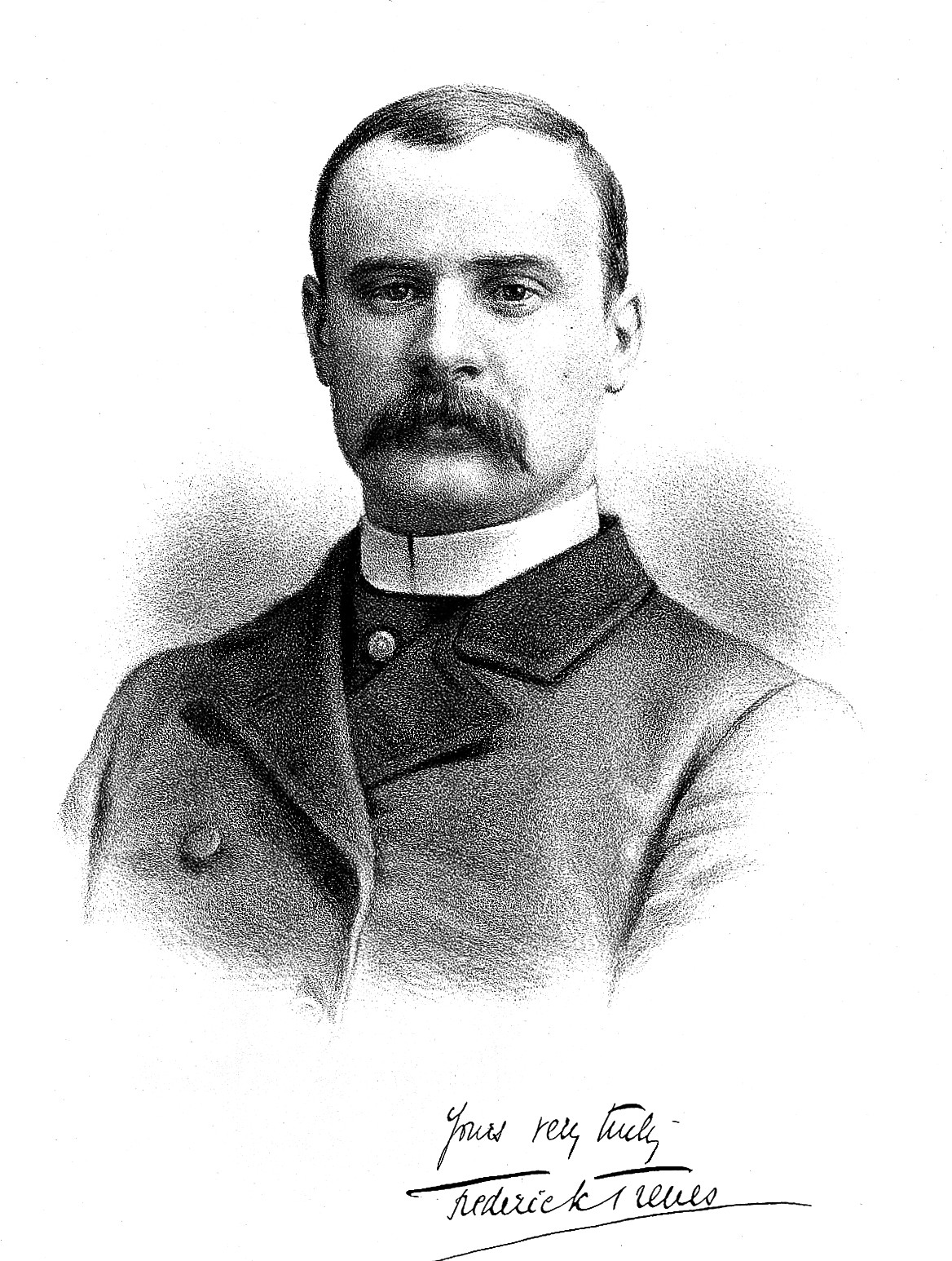 Quotes By Sir Frederick Treves Like Success