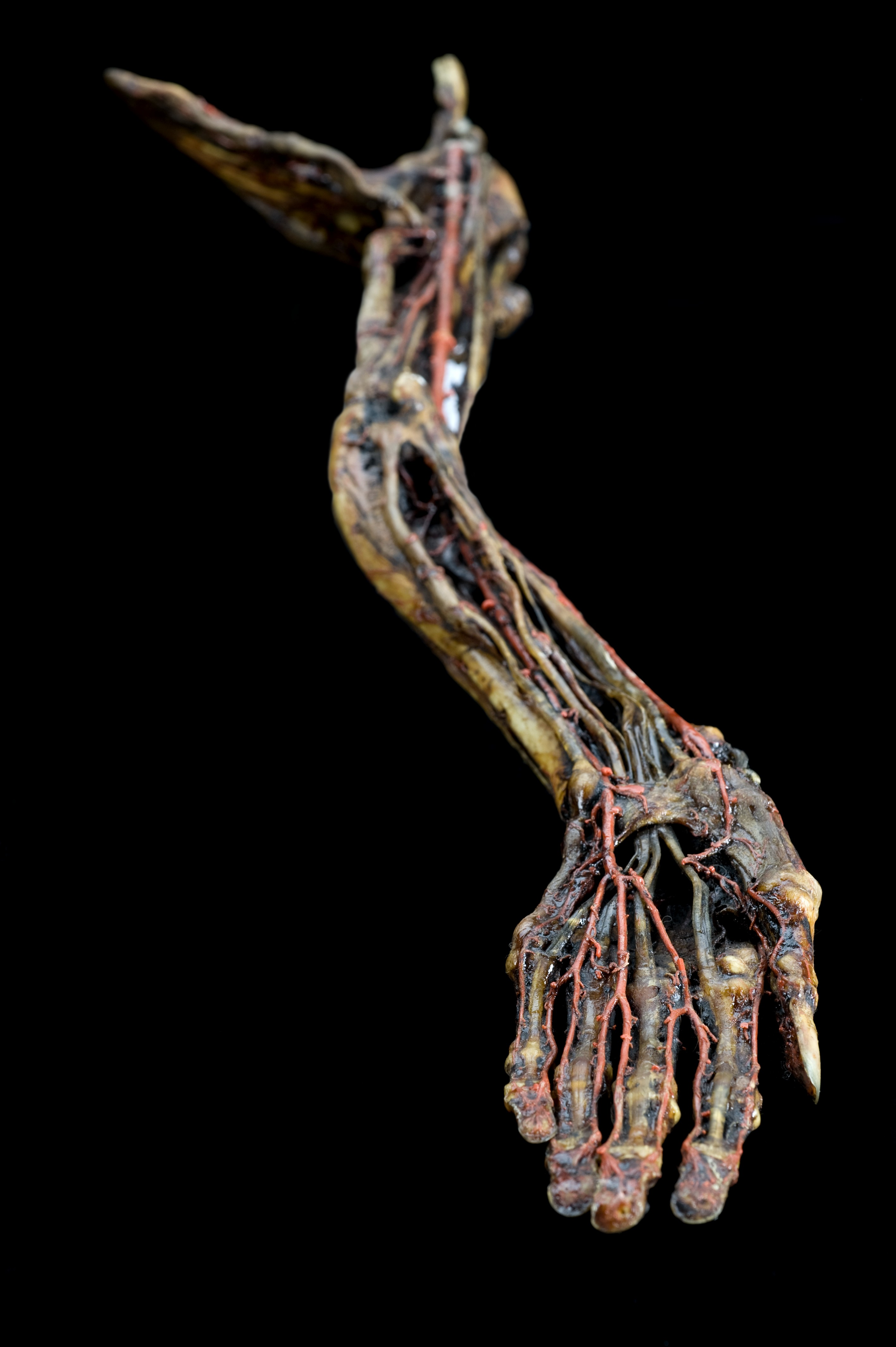 File:Wax injected human left arm, Europe, 1831-1870 Wellcome ...