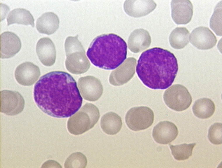 ALL - Peripherial Blood - Diagnosis von WikiCommons