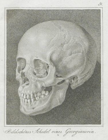 The skull Johann Friedrich Blumenbach discovered in 1795, which he used to hypothesize origination of Europeans from the Caucasus. Georgierin.png