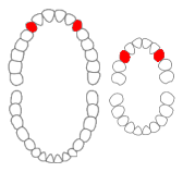 Maxillary canines01-01-06.png