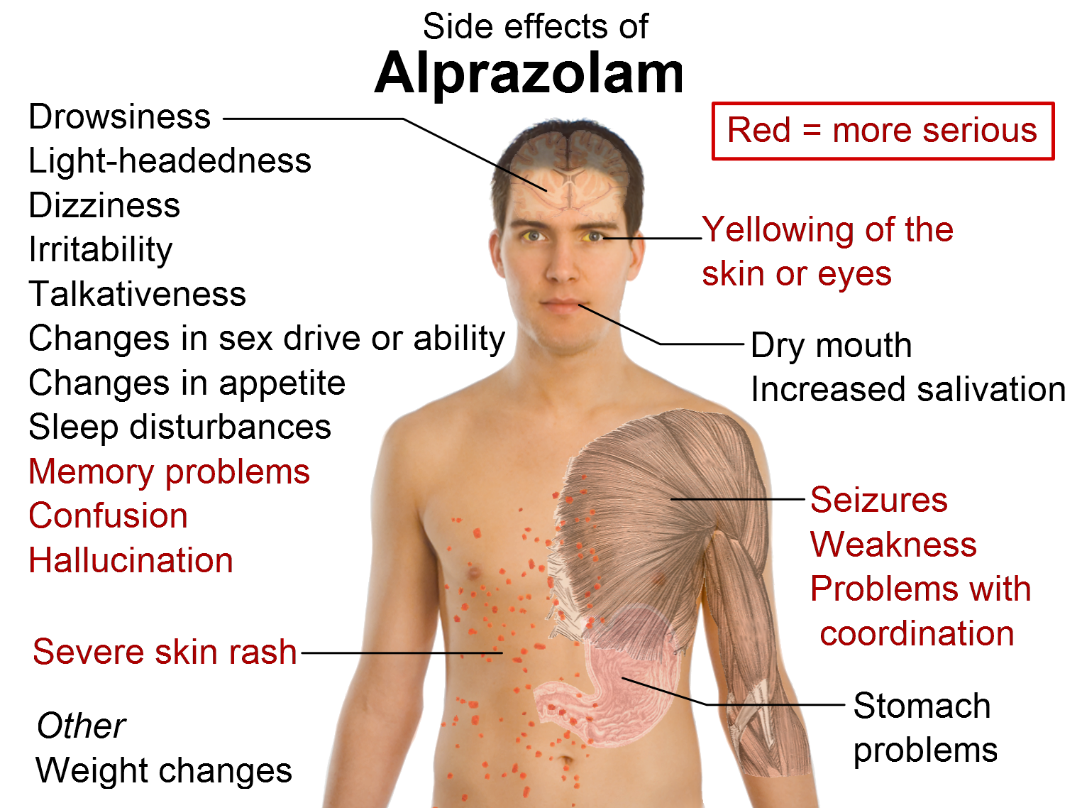What Does Alprazolam Look Like