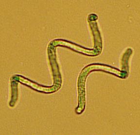 Spirulina el alimento con mas proteinas  Spirul2