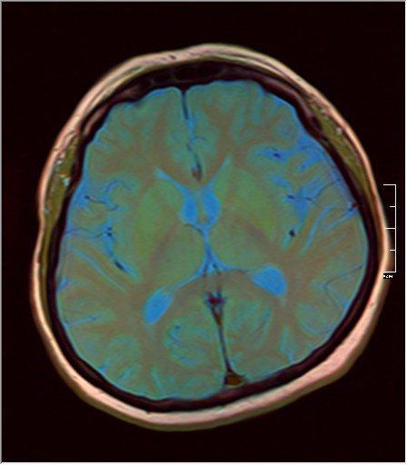 Brain MRI 0125 09.jpg