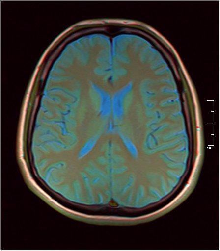 Brain MRI 0249 07.jpg