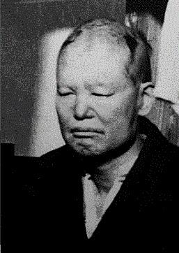 明石海人 - Wikipedia