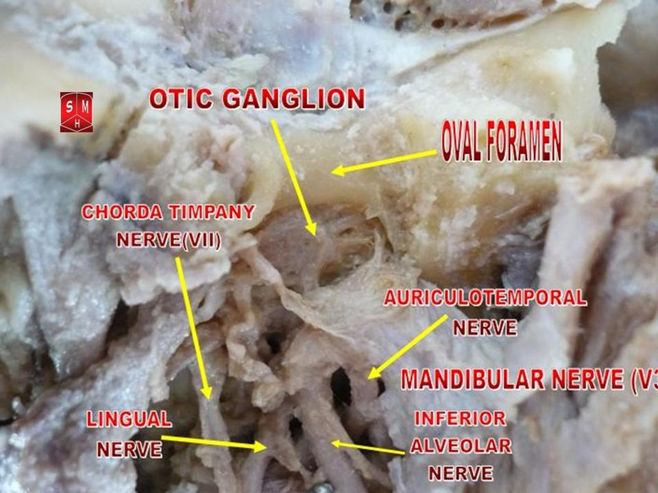 Fileotic Ganglion 2g Wikimedia Commons