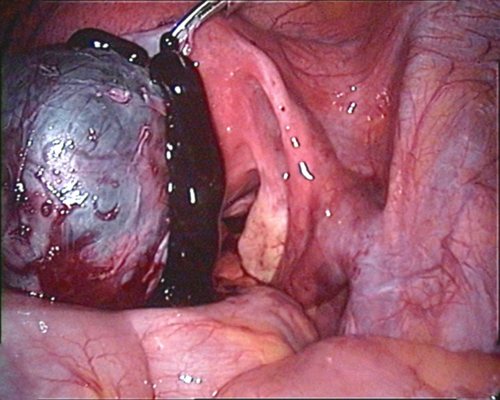 File:Perforierte Endometriosezyste.jpg
