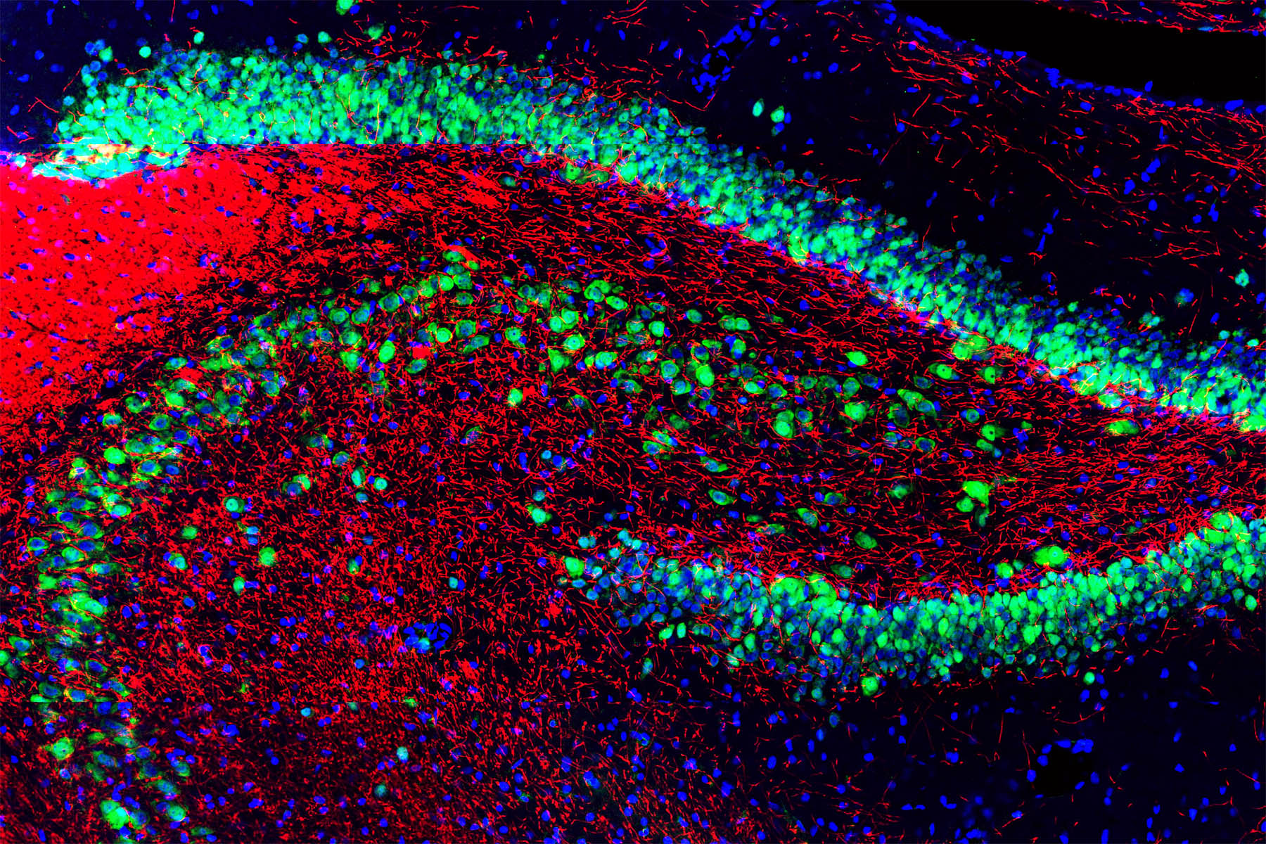 NeuN staining in green and myelin basic protein in red on a section of rat hippocampus. Antibody staining and image courtesy of EnCor Biotechnology Inc.