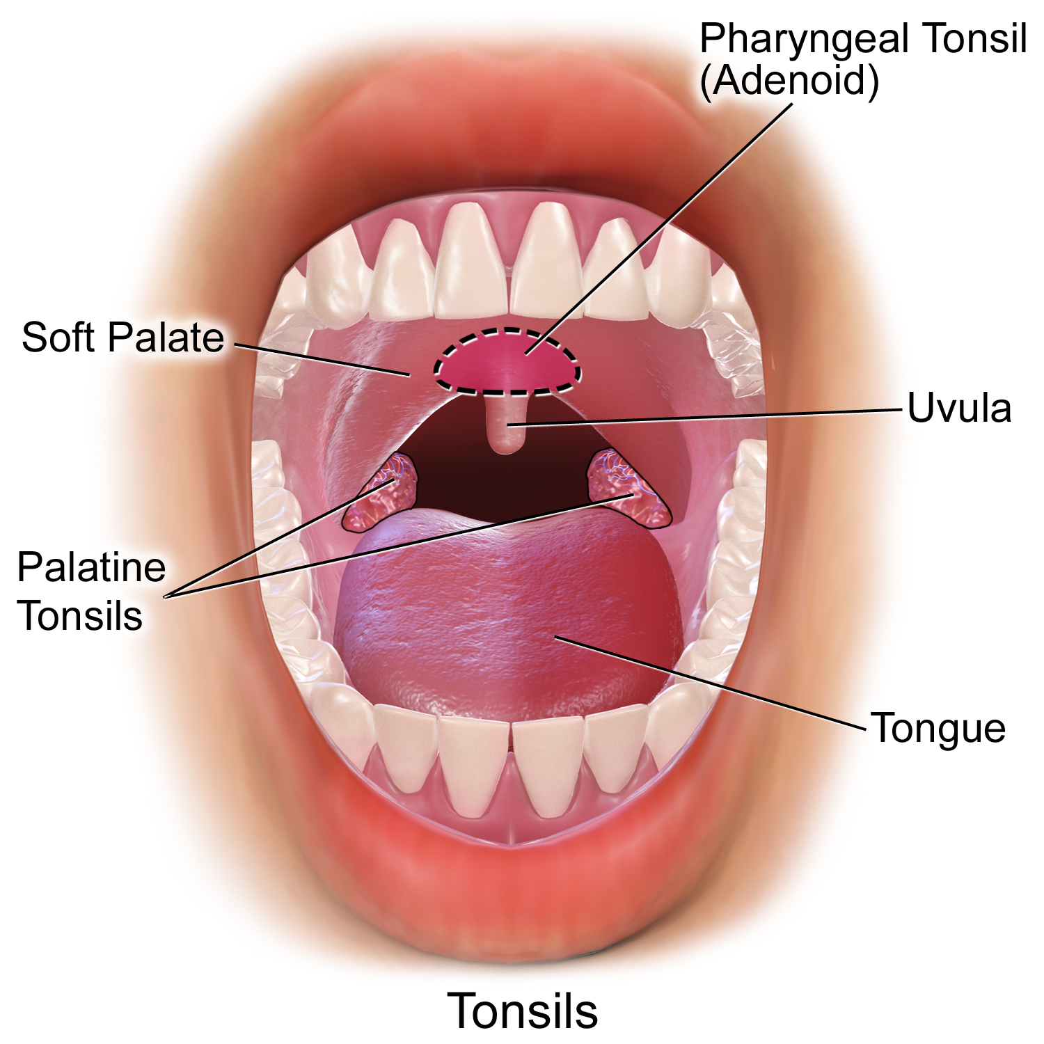 File Blausen 0859 Tonsils Amp Adenoids Png Wikimedia Commons