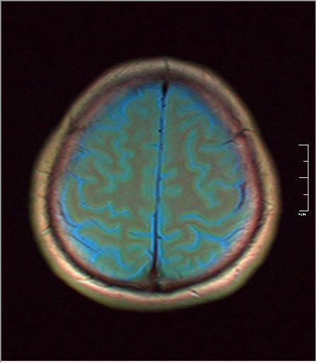 Brain MRI 0081 03.jpg