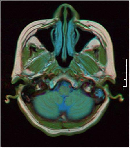 Brain MRI 0213 18.jpg