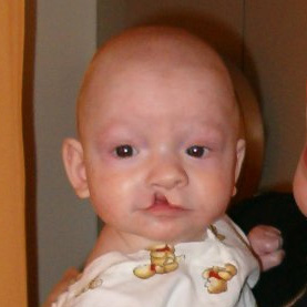 Boy, 1 month after the surgery to repair his c...