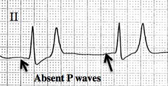 p wave ecg
