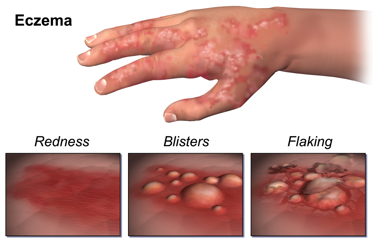 What Causes Dermatitis? - News Medical