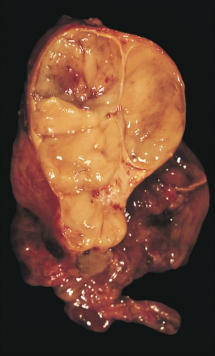Datei:Encapsulated thymoma.jpg