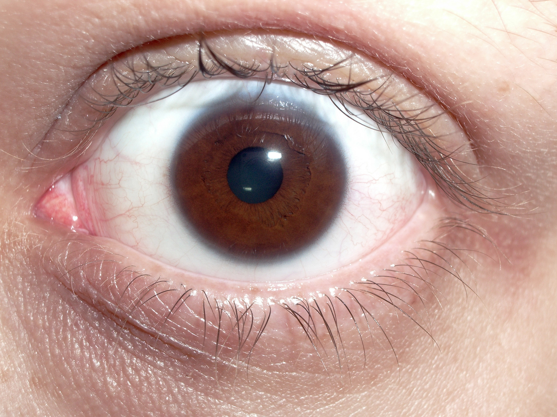 human eye This chapter deals with the optical system of the human eye and the correction of  its defects by means of spectacles primarily, the optical.