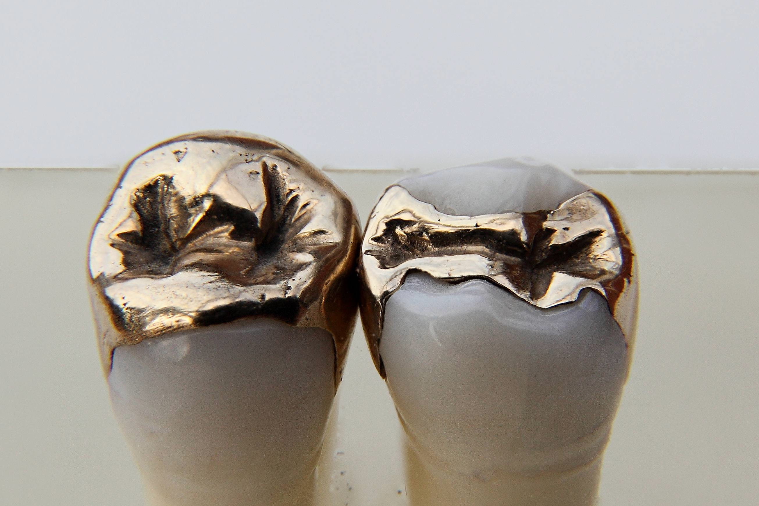 Image result for gold teeth