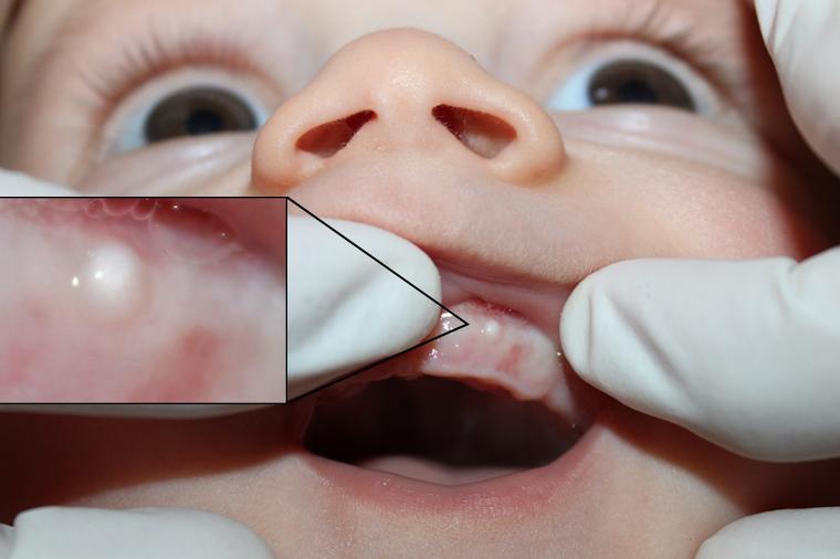 Weißer Punkt Im Mund Baby