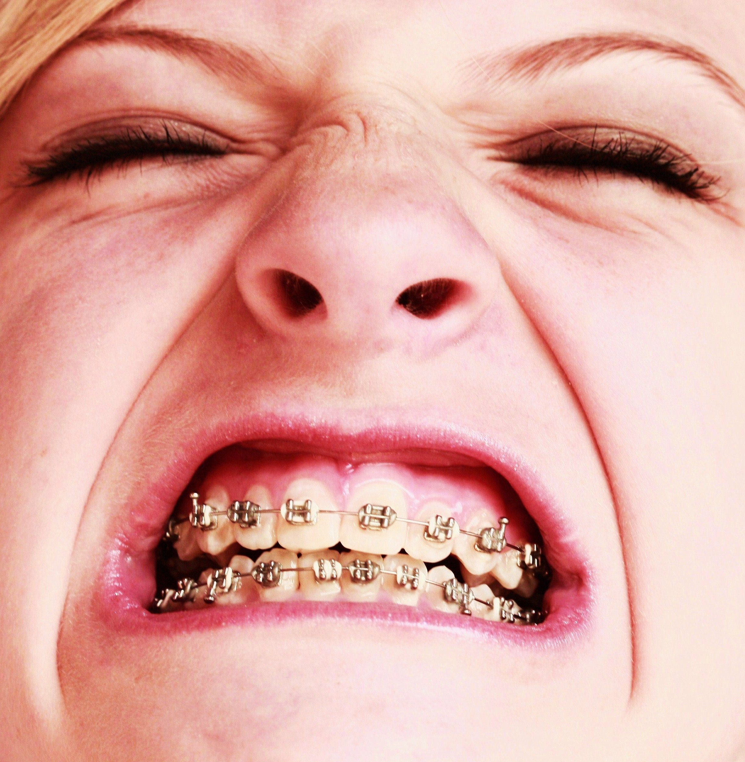 Description free awesome girl with braces close up