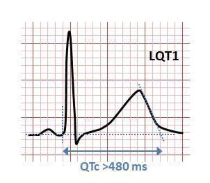 Long QT syndrome type 1.jpg