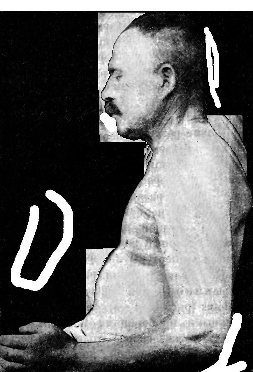 File:Pyknic-Circular  Profile png - Wikimedia Commons
