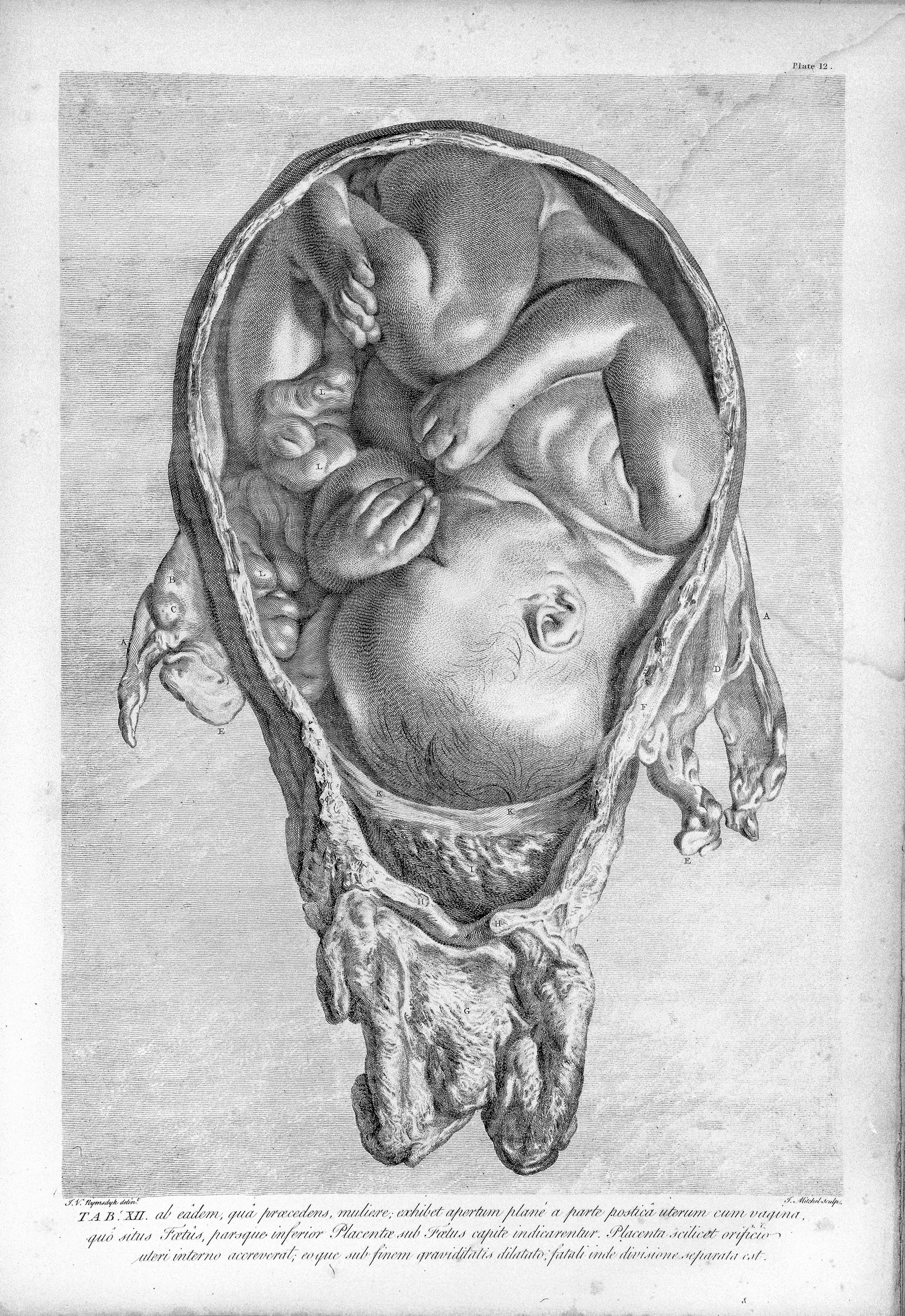 Filewilliam Hunter The Anatomy Of The Human Gravid Uterus