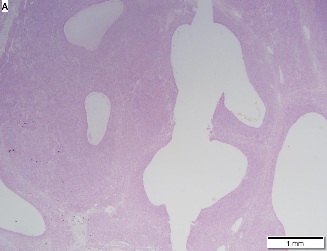 Juvenile granulosa cell tumor
