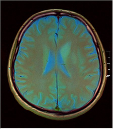 Brain MRI 0211 07.jpg