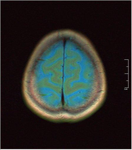 Brain MRI 0213 01.jpg