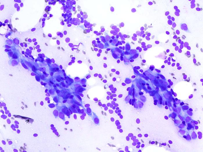 Breast fibroid adenomas