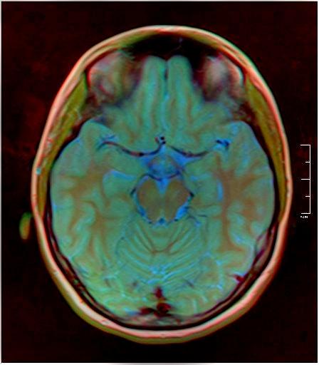Color Brain MRI 0284 13.jpg