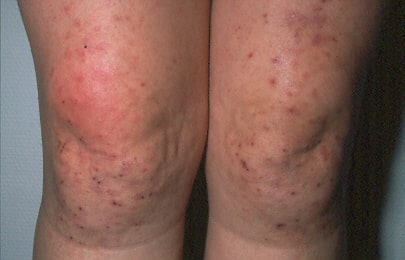 Dermatitis Herpetiformis on the Knees and Legs