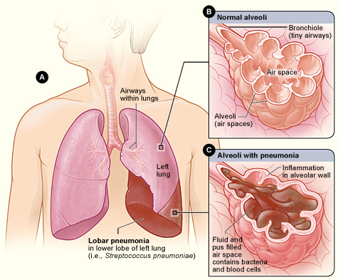 Lobar pneumonia - Wikipedia, the free encyclopedia