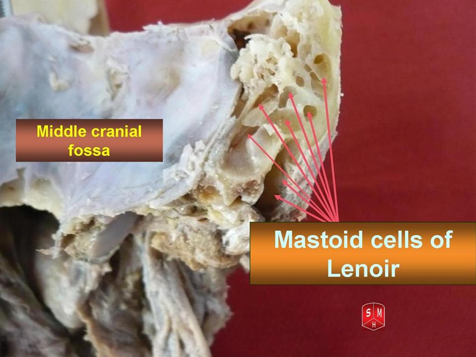 Mastoid air cells mastoid air cell