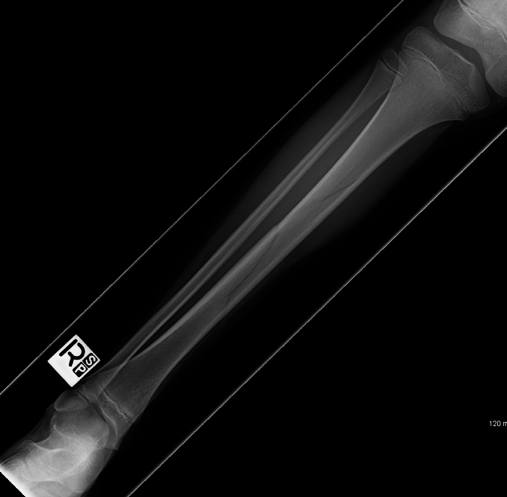 Spiral Fracture Of Tibia http://commons.wikimedia.org/wiki/File:Spiral_fracture_of_the_tibia.PNG