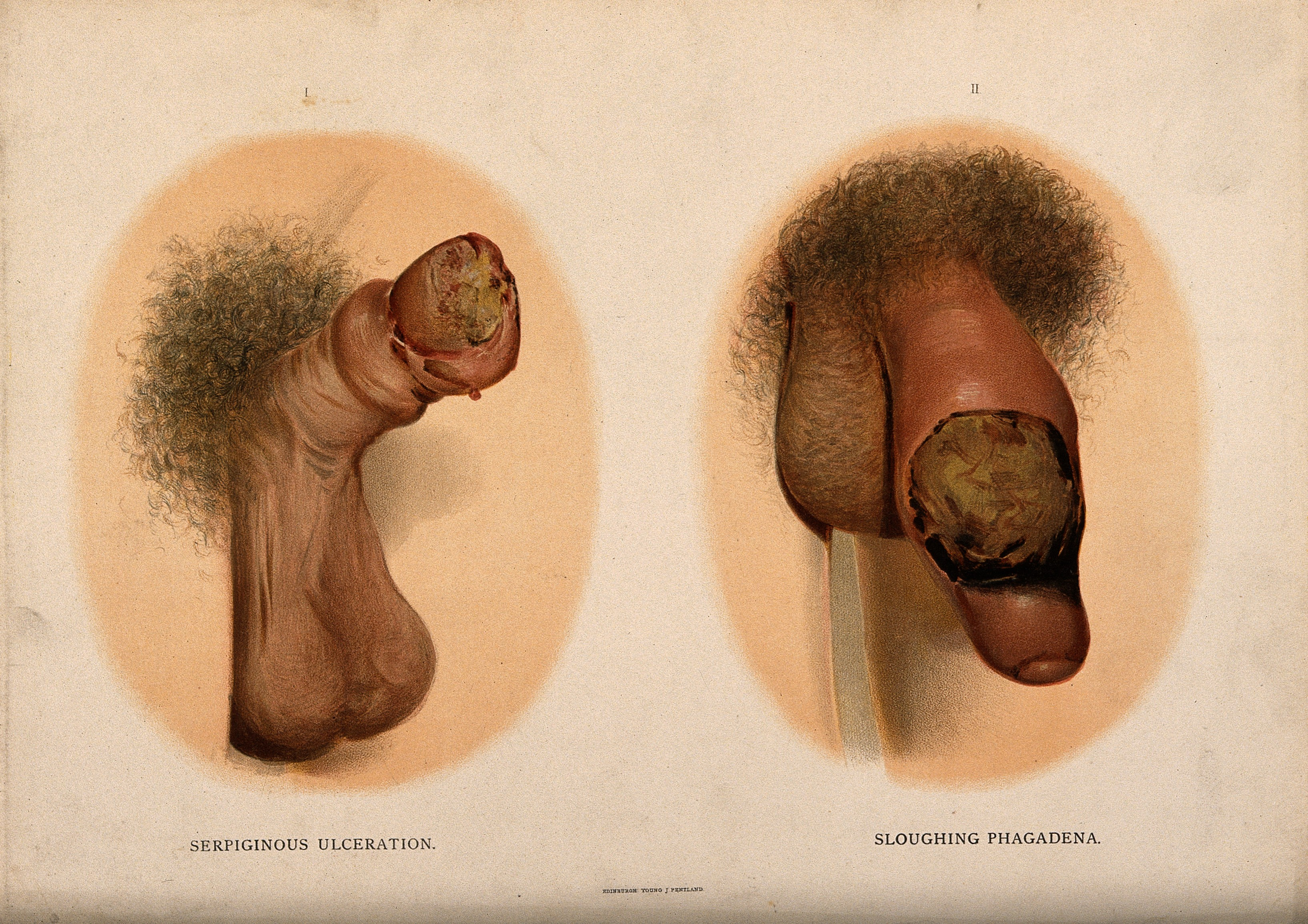 File:A penis with a skin disease on the glans; and a penis with