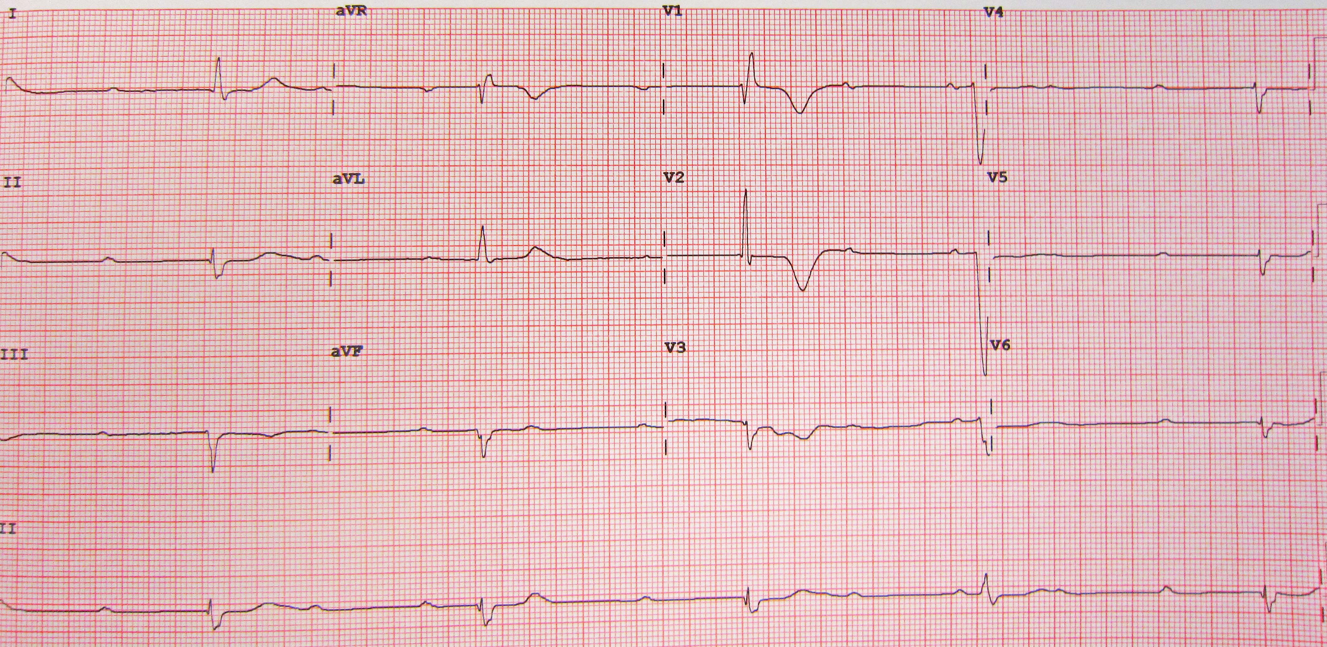 third degree heart block What would the ekg tracing of someone with third- degree heart block look like third-degree block, also known as third-degree atrioventricular block is a cardiac conduction system where there is no conduction through the atrioventricular node (budzikowski 2014.