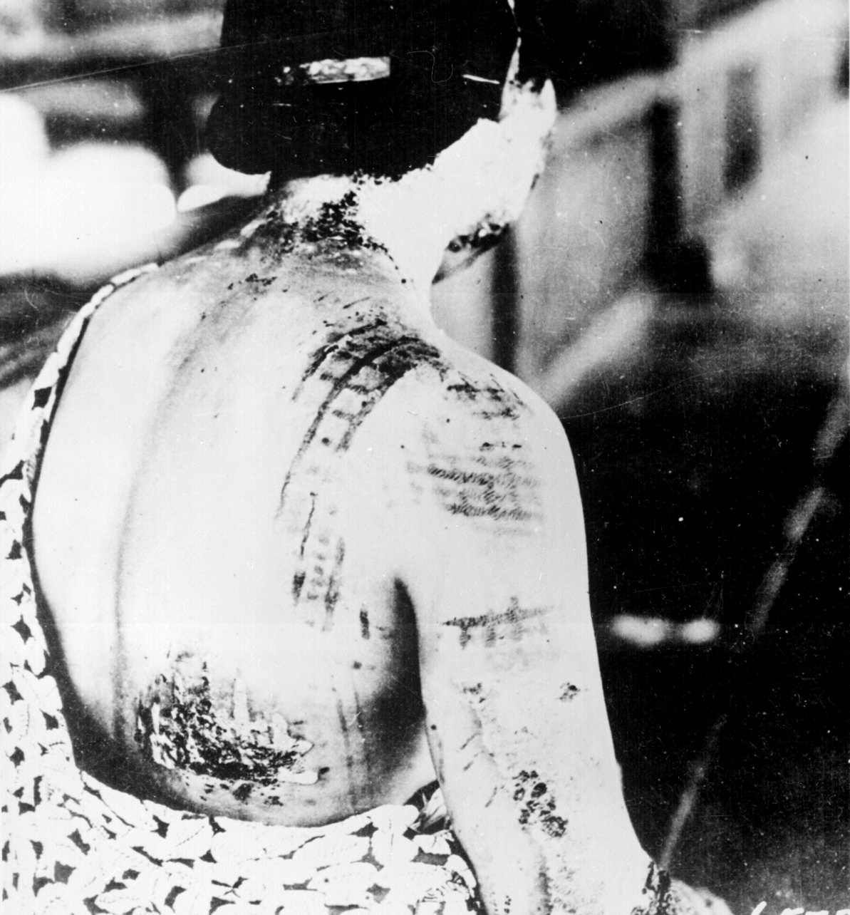 Burns visible on a woman in Hiroshima during the blast, darker colors of her kimono at the time of detonation correspond to clearly visible burns on skin touching parts of the garment exposed to thermal radiation. Since kimonos are not form fitting attire, some parts were not directly touching her skin are visible as breaks in the pattern. As well as tighter fitting areas approaching the waistline where the pattern is much more defined.