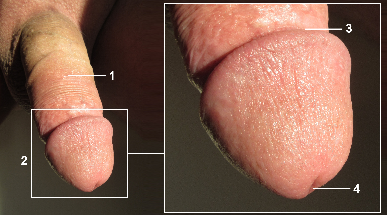 Penis ein wie aus beschnittener sieht Wie sieht