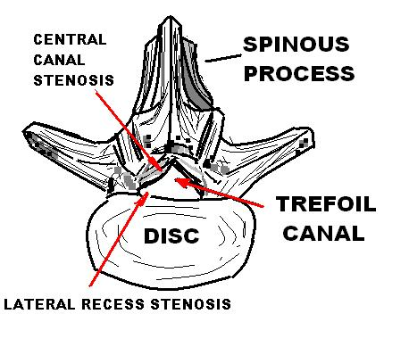 spinal stenosis Lumbar spinal stenosis (lss) is a medical condition in which the spinal canal narrows and compresses the nerves at the level of the lumbar vertebrae.
