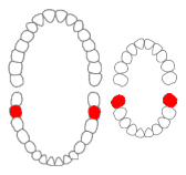 Mandibular second molars01-01-06.png