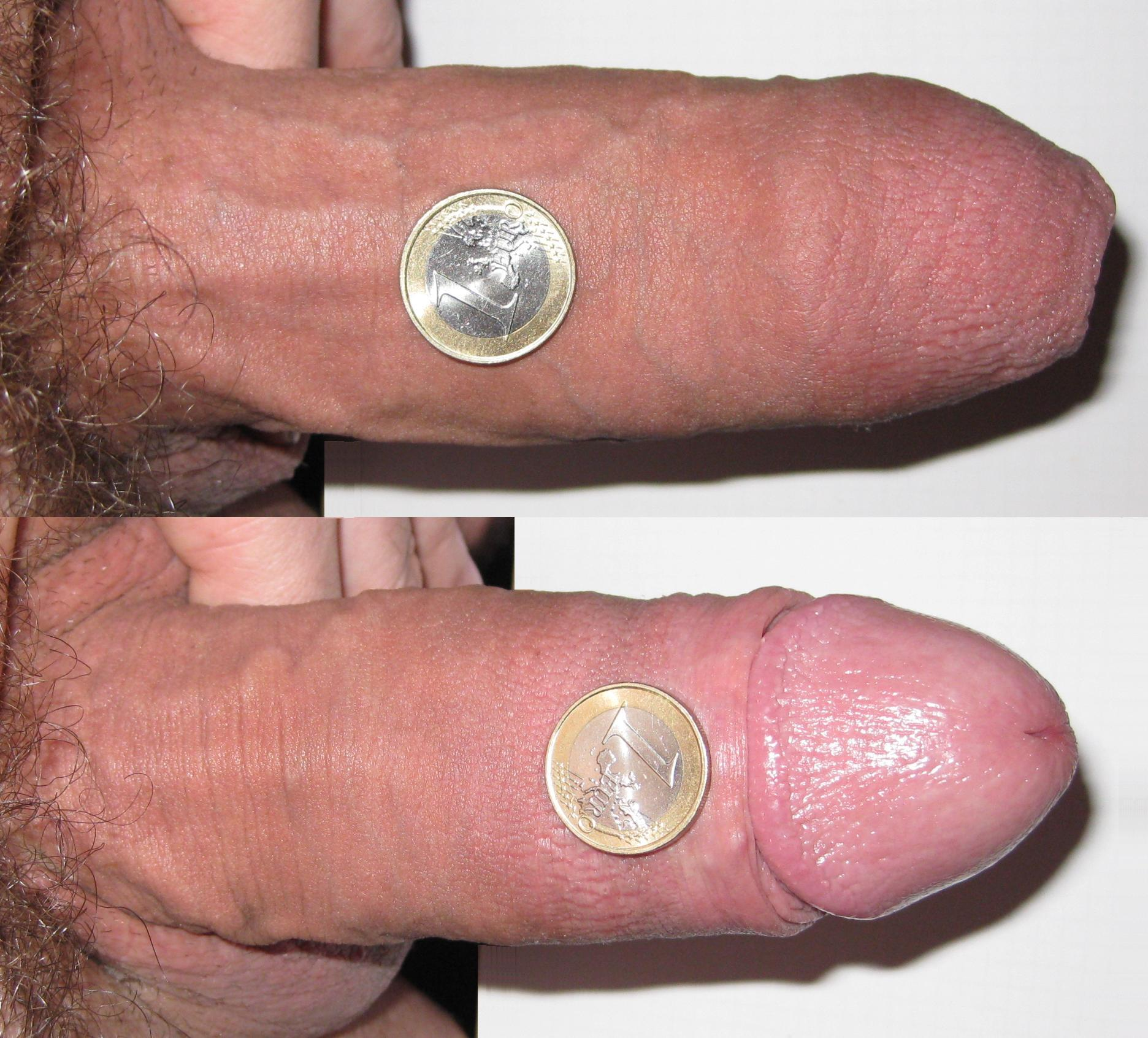 Enlargement penis girth